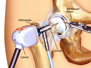 What is hip arthroscopy and is it right for me?