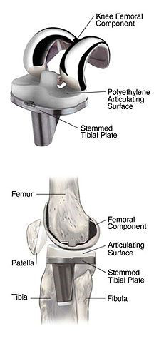 Recovery Knee Images